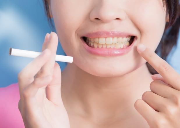 The Impact Smoking Has On Dental Procedures