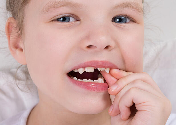 Are There Any Risks Associated With Baby Teeth Extractions?