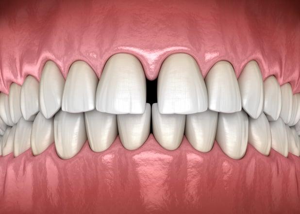 Best Dental Options for Gapped Teeth