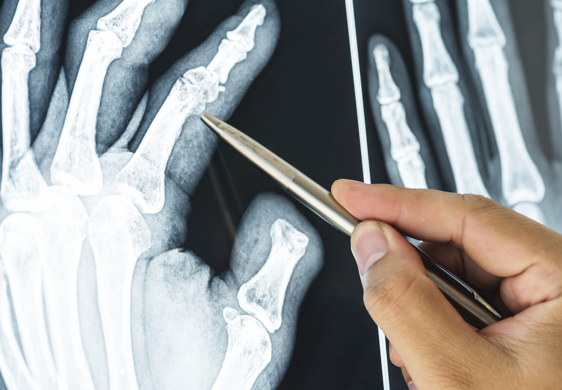 What are the Risk Factors and Causes of Osteoporosis?