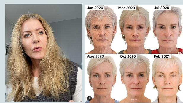 Alice Hart-Davis talking about the Judy Murray before and after images