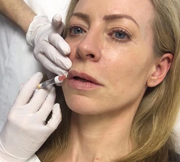Alice Hart-Davis having lip filler treatment
