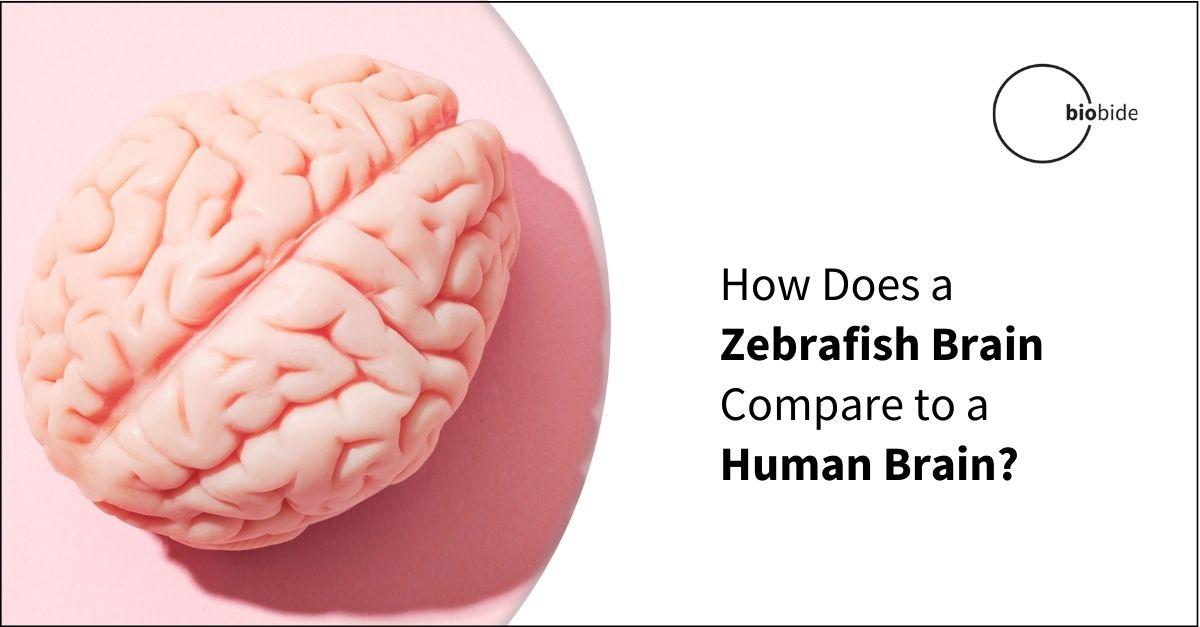 How Does a Zebrafish Brain Compare to a Human Brain?