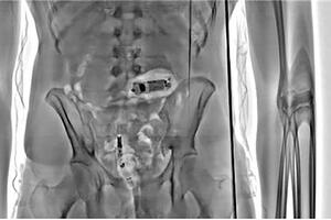 Prison Service stops 10,000+ smuggling attempts with x-ray scanners