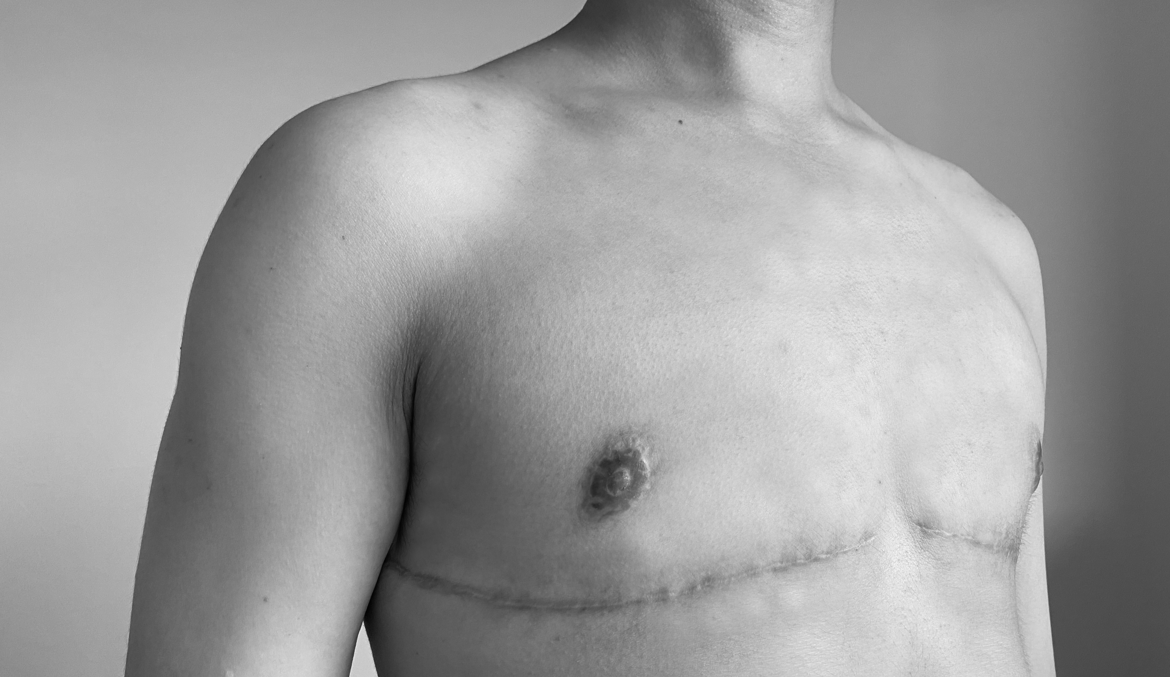What is FTM Top Surgery Called?