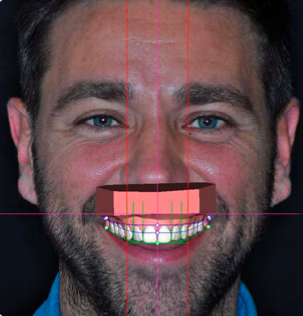 An on-screen simulation of a patient's new smile with Digital Smile Design.