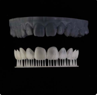 A 3D-printed model of a patient's new smile using Digital Smile Design.