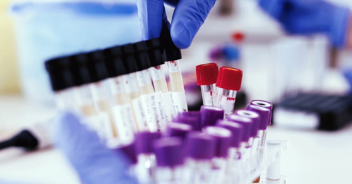 Instant Drug Testing Vs Lab Based Testing What You Need To Know