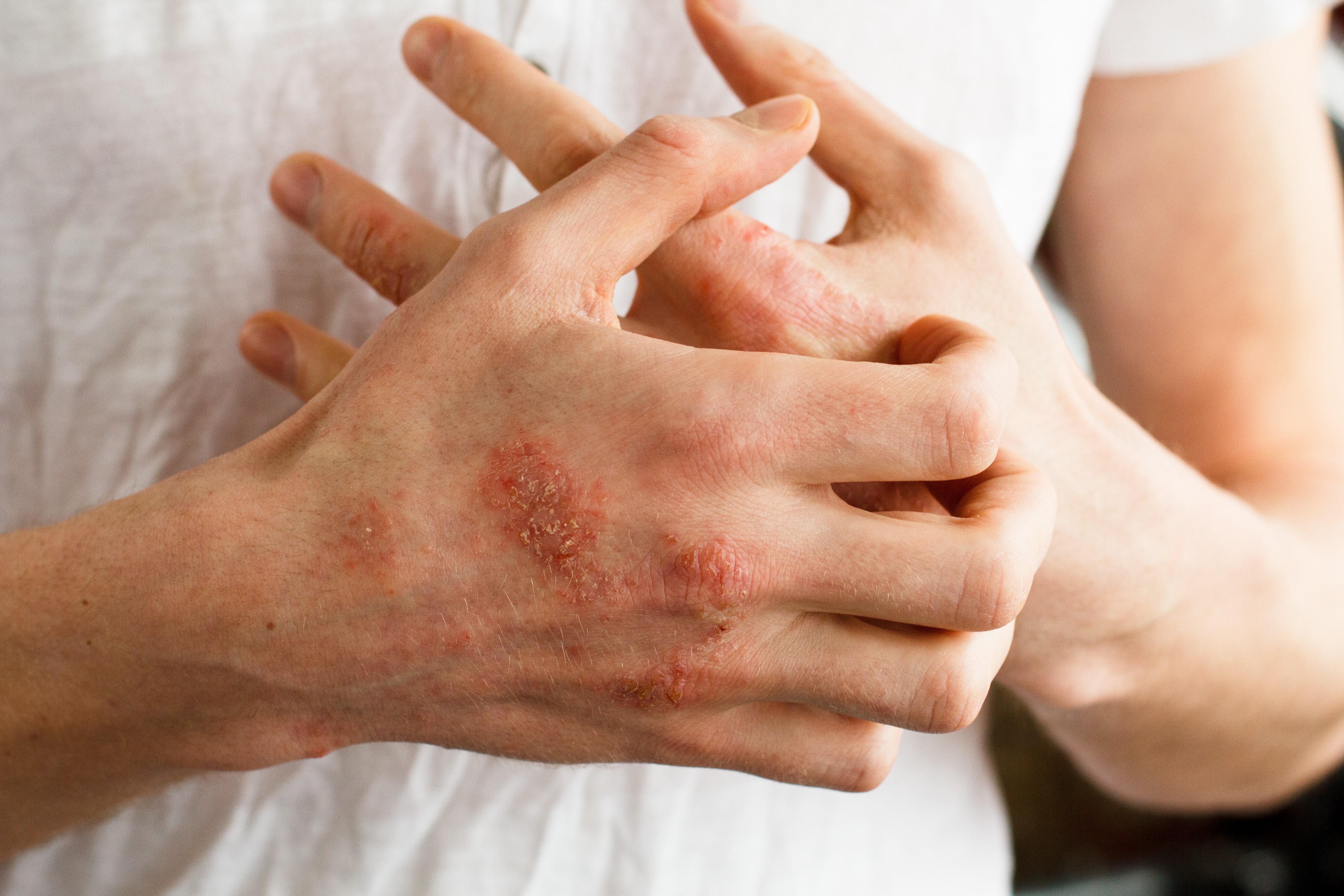Hand irritation